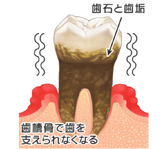 歯周病の分類